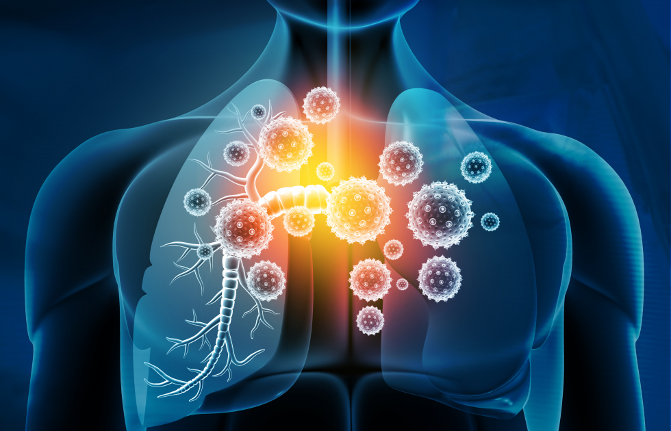 2021-22 Rapid Uptake Products: Improving the diagnosis and treatment of asthma through innovation