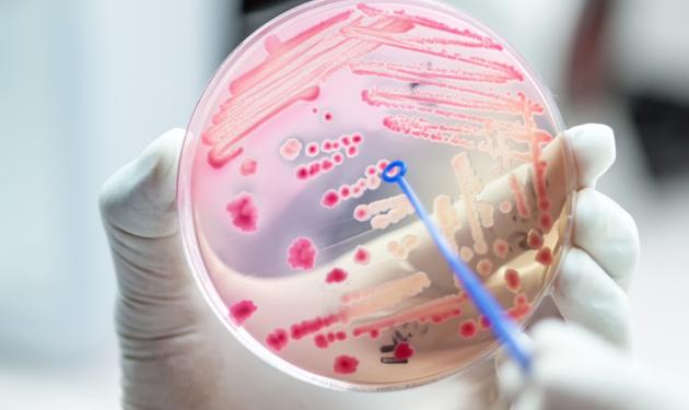 Innovation Exchange to tackle NHS challenges around antimicrobial resistance